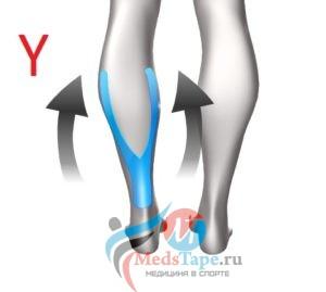 Y-тейпирование икроножной мышцы