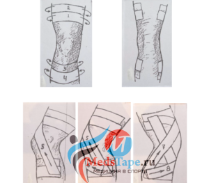 Шаг 1: Выше и ниже колена наклеиваем пару однополосных тейпов перпендикулярно оси ноги.
