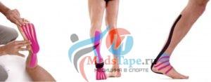 Как показывает практика спортивной медицины для профилактики травматизма стопы лучше использовать методику лимфа-тейпа