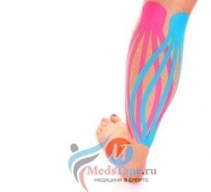 лимфа-тейпирование икроножной мышцы