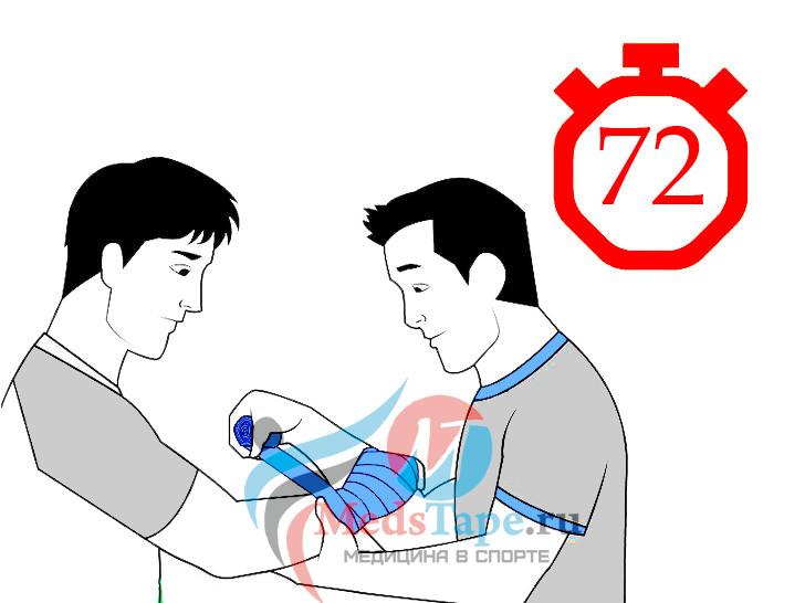6. Продолжайте завязывать руку по истечении первых 72 часов после травмы.