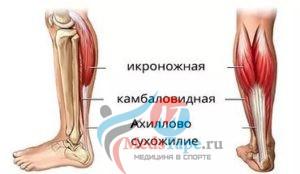 Строение икроножных мышц ноги