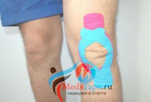 Тейпирование колена при травме мениска