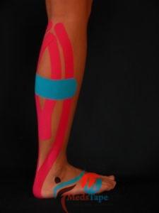 тейпирование икроножного и камбаловидного мускула нужно делать одномоментно