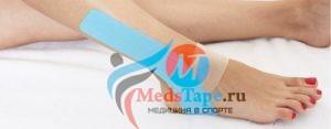 Лёгкое тейпирование голеностопа