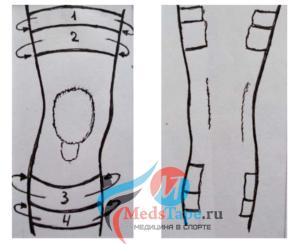Шаг 1: Наклеиваем широкие однополосные тейпы перпендикулярно оси ноги выше и ниже сустава на 10-15 см