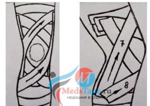 Шаг 3: Тейпирование колена - Повторяем процедуру в зеркальном положении. С внутреннего верхнего угла к наружному внешнему.