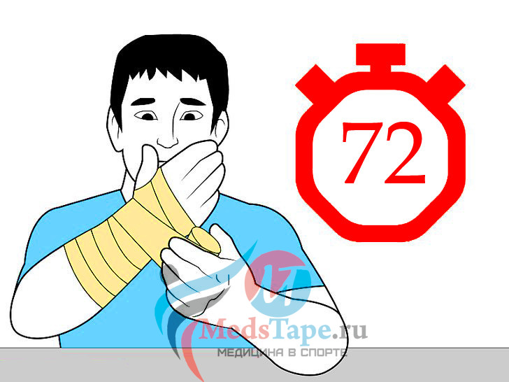 7. Продолжайте накладывать бинты по истечении 72 часов после травмы.