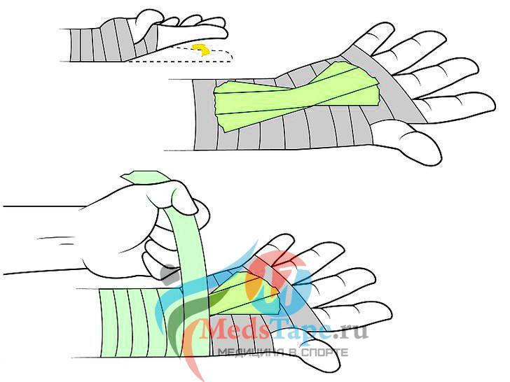 6. Приклейте получившийся «веер» на ваши бинты.