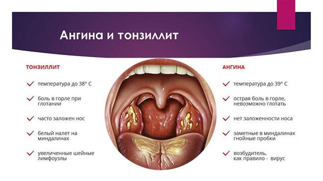 Сравнение ангины и тонзиллита