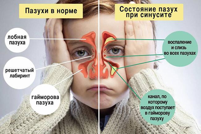 Пазухи в норме и при воспалении