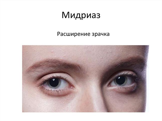 Мидриаз