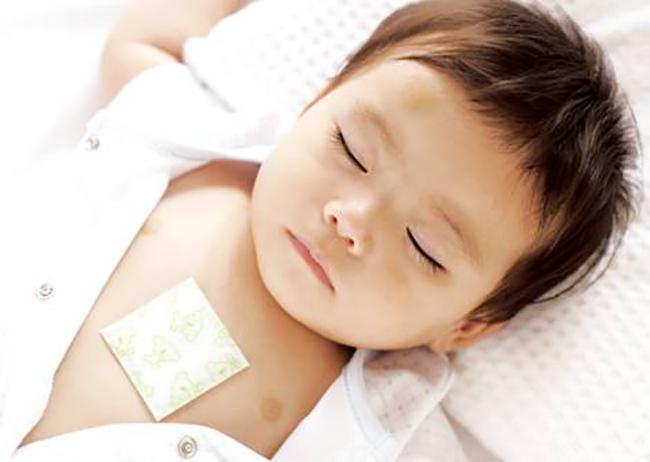 Применение согревающего пластыря от кашля у ребенка