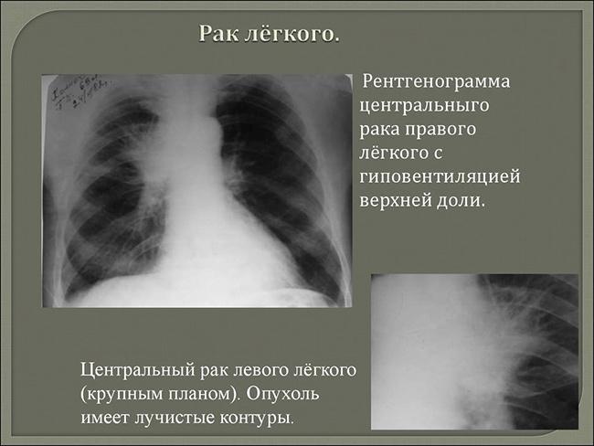 Рентгенологический снимок легких с раковой опухолью