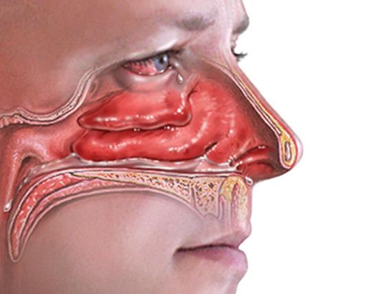 Вид аллергического риносинусита