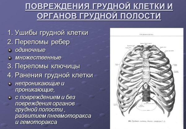 Варианты травм грудной клетки