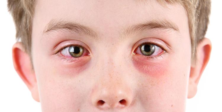 Аллергический риноконьюктивит
