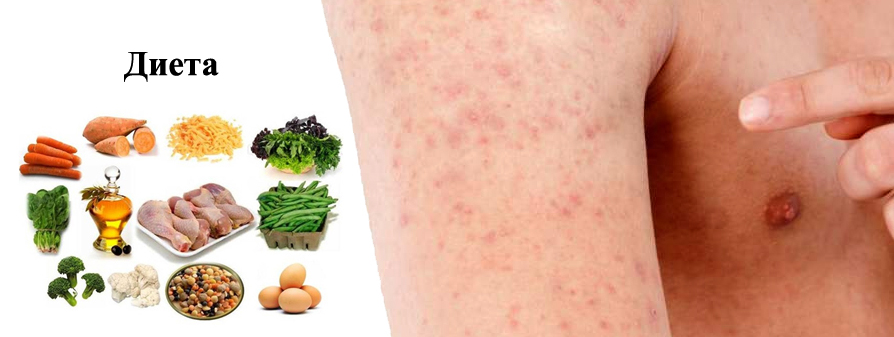 Диета при аллергии на глютен