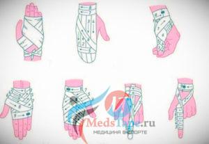 Схема правильного наложения эластичной повязки на пальцы рук
