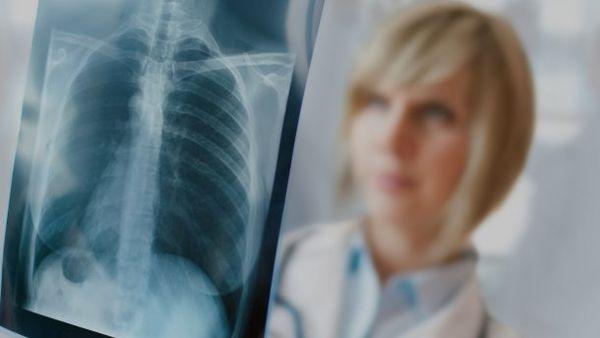 Врач и рентгенографический снимок легких