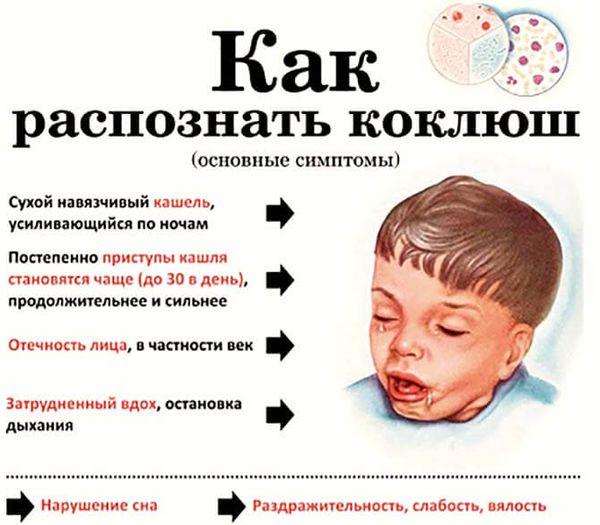 Основные симптомы коклюша у ребенка