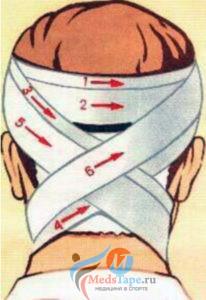 Крестообразная повязка на затылок