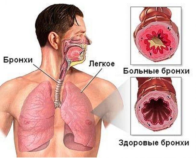 Бронхи человека: здоровые и больные