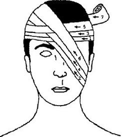 Перевязка глаз