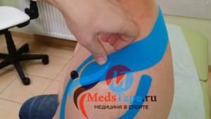 Порядок наклеивания тейпа на плечо: шаг 2 - тейпирование надостной мышцы плеча