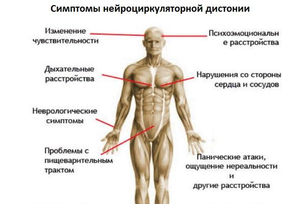 Симптомы нейроциркуляторной дистонии
