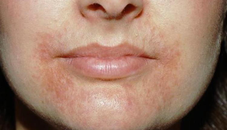 Аллергия вокруг рта