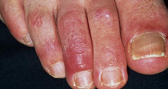 Раздражение на пальцах ног