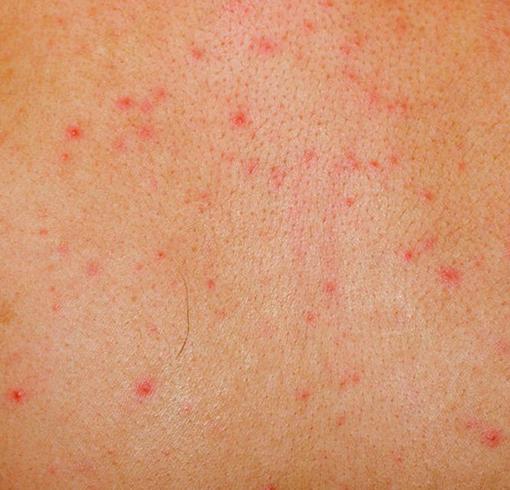 Красные точки на коже