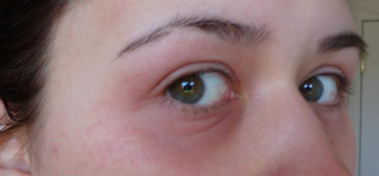 Покраснения около глаз