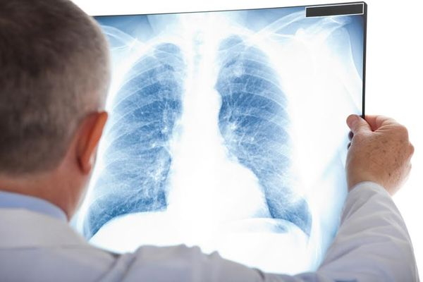 Рентген-снимок органов грудной клетки