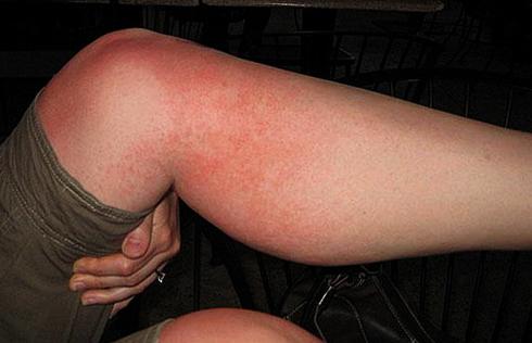Сыпь на коленях