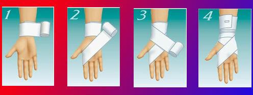 Способ 1: фиксация запястья эластичным бинтом