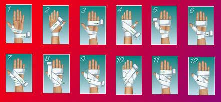 Способ 2: фиксация кисти эластичным бинтом через пальцы