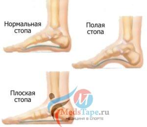 Виды стоп ног и их патологии