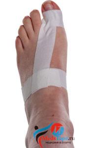 Инструкция наложения тейпа на большой палец ноги в спорте - шаг 3
