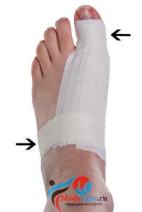 Инструкция наложения тейпа на большой палец ноги в спорте - шаг 6