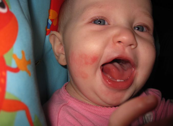Высыпания на коже у малыша